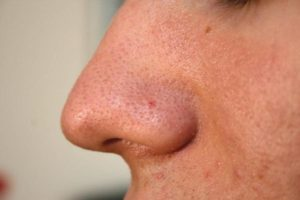 get-rid-of-blackheads-fast-01